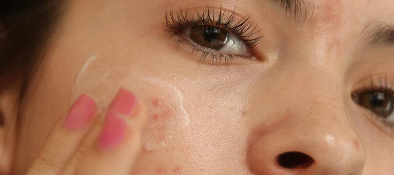 How Do Hormones Impact Your Skin?