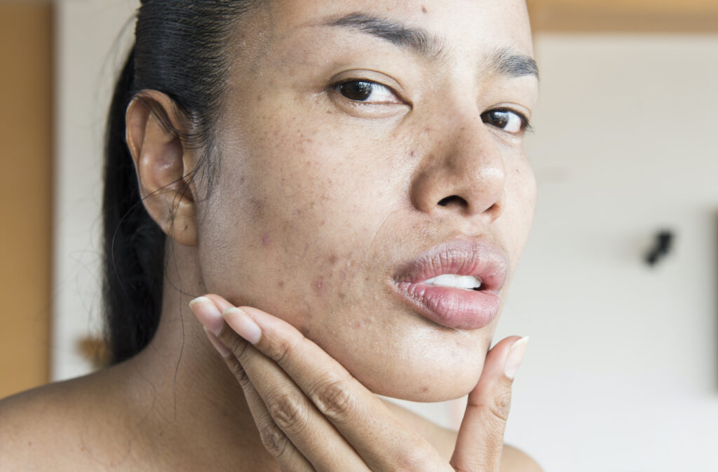Is It OK To Have Pimples When Using Rejuvenating Set?