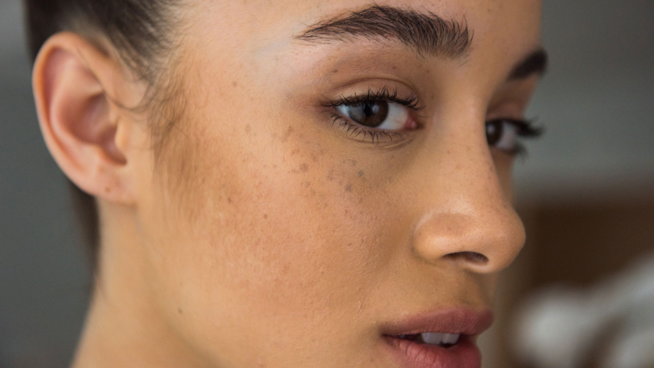 What Are Dark Spots And How Rejuvenating Set Treats Them?