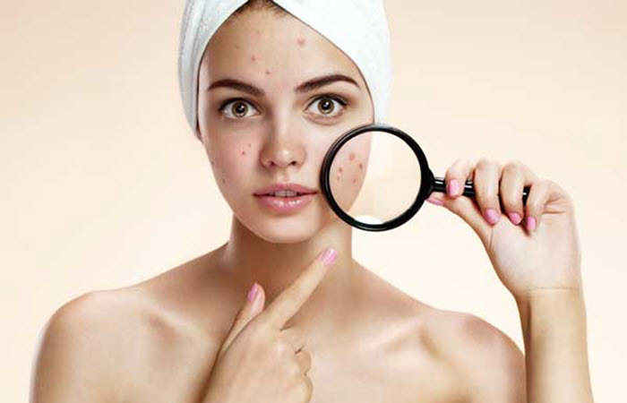 PURGING VS BREAKOUTS: WHEN TO STOP USING REJUVENATING SET