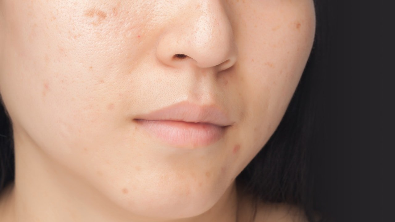 Rejuvenating Set Treats Pimples