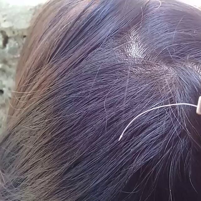 Pulling Out a White Hair From Your Head Causes More?